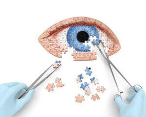 cataract options